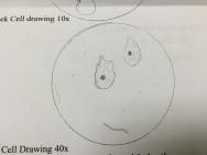 cheek drawing